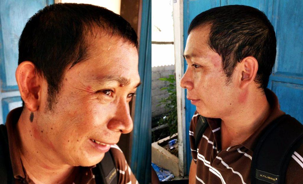 Keluarga Korban Tak Terima, Suraimi Alami Keretakan Ditulang Tengkorak Pelipis Akibat Dianiaya Belasan Orang